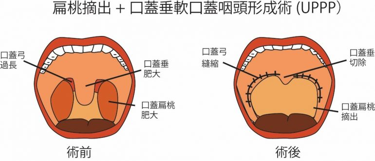 いびき・睡眠時無呼吸症候群の手術(LAUP・UPPP)|大阪市城東区 ...