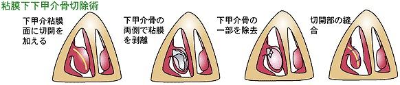 粘膜下下甲介骨切除術