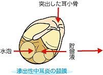 滲出性中耳炎の鼓膜