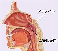 アデノイド切除術