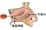 (鼻中隔矯正術)+粘膜下下甲介骨切除術+後鼻神経切断術